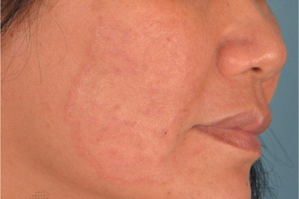facial rash